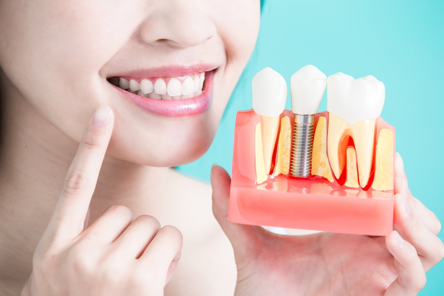 Reasons to Consider Dental Implant Treatments